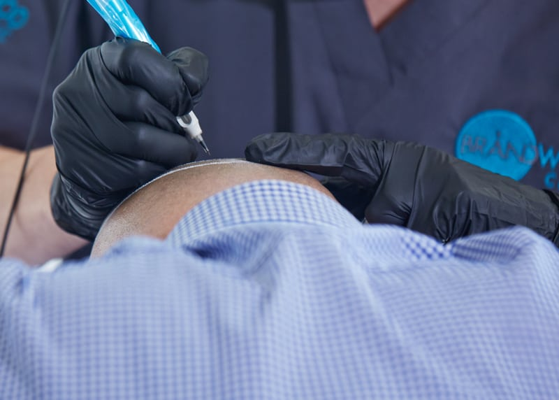 Practitioner carrying out a patch test