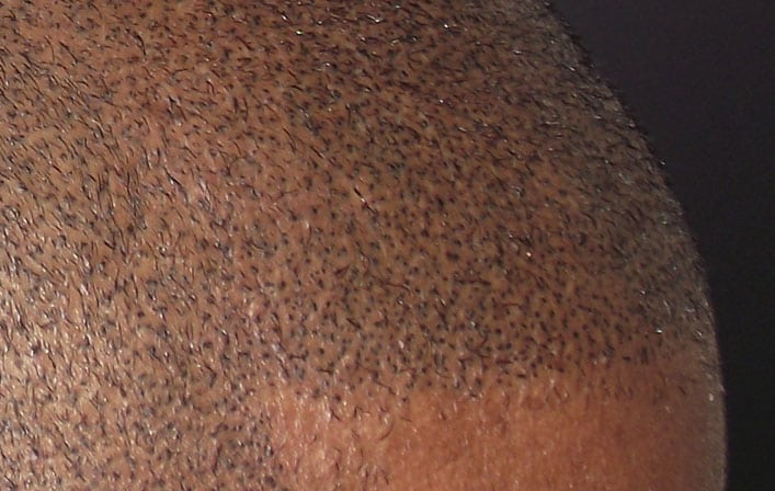 Defined Hairline