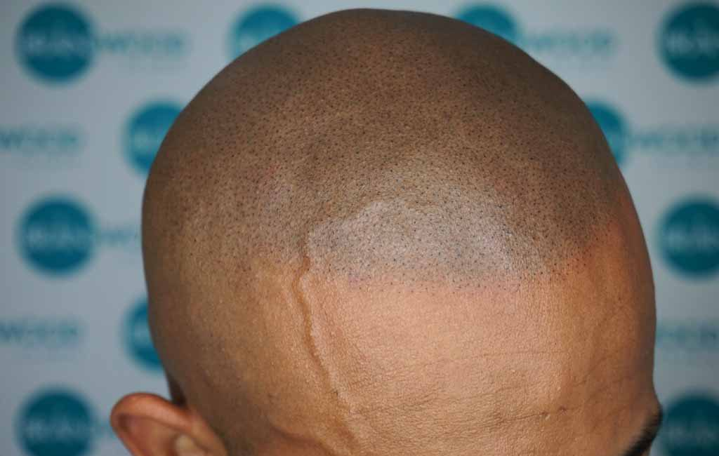 Eymen: After Scalp Micropigmentation