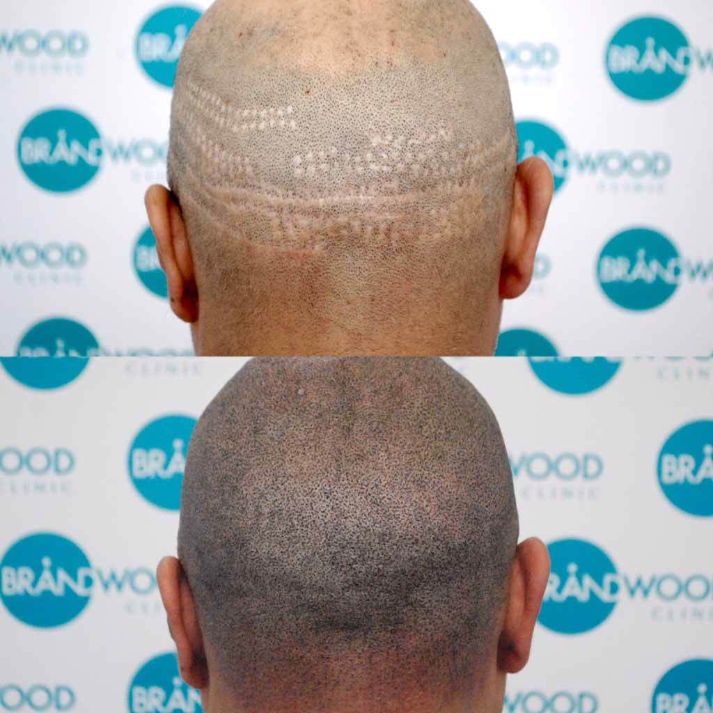 FUE scarring, scalp micropigmentation