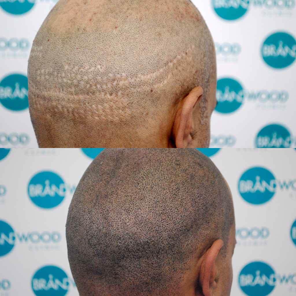 Transplant scars scalp micropigmentation