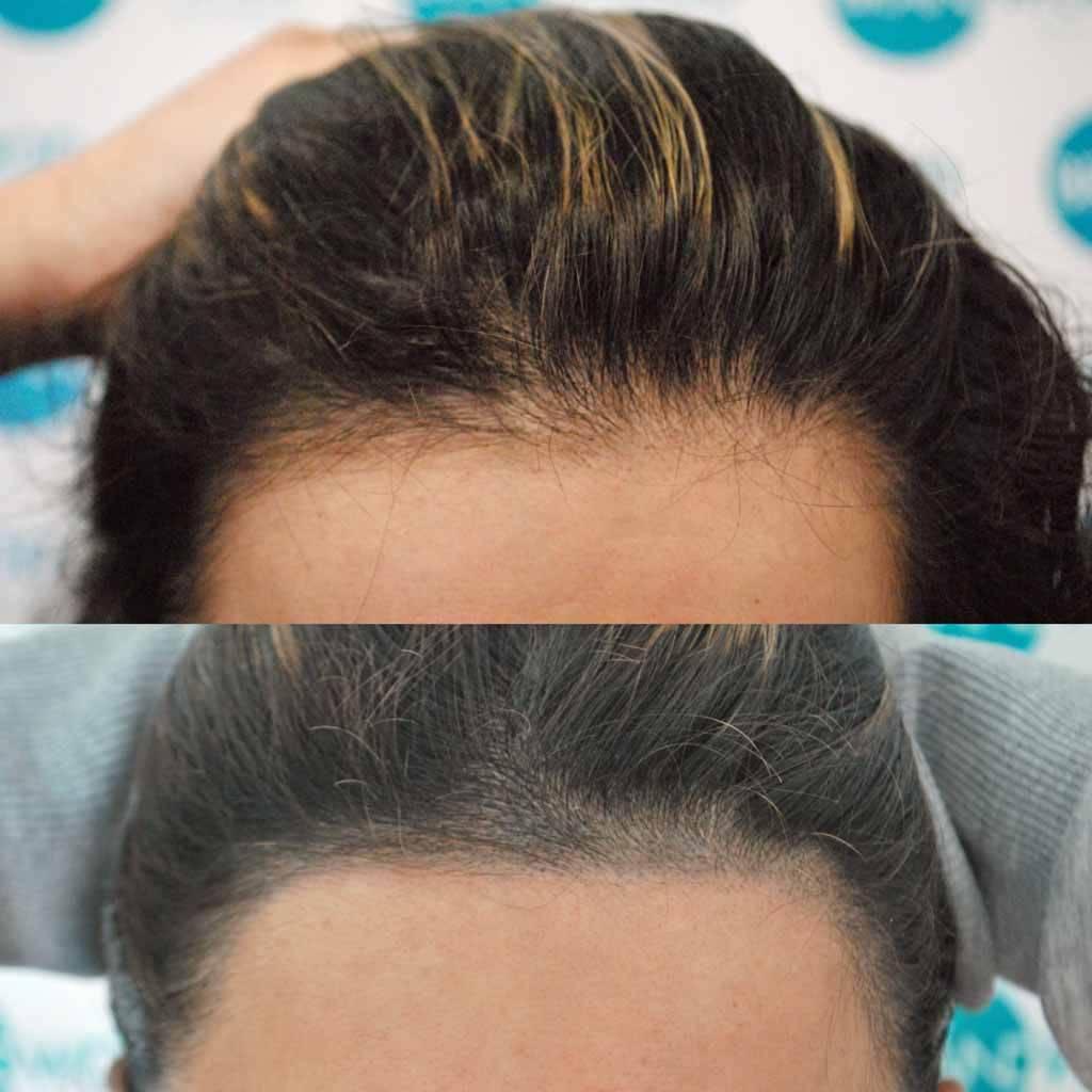 Shamina Before and After