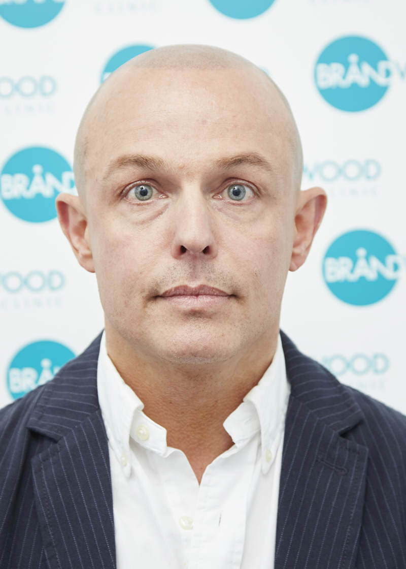 Jon: After Treatment for Alopecia