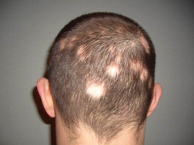 Jon: Before Treatment for Alopecia