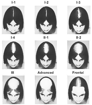 Savin scale female hair loss