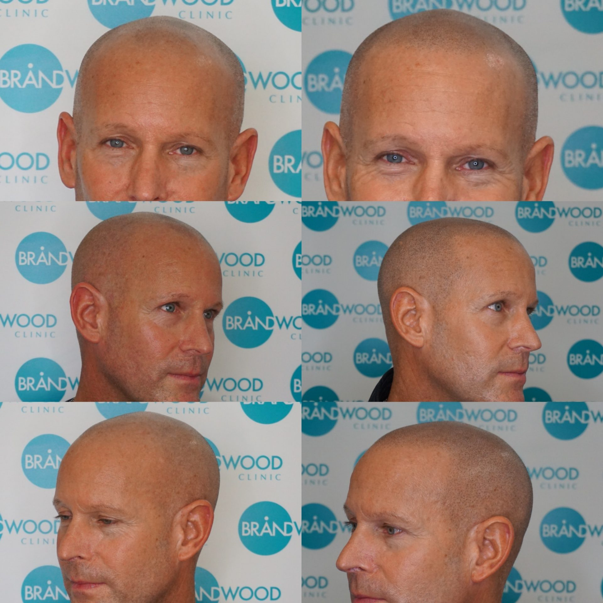 Perry: Before & After SMP