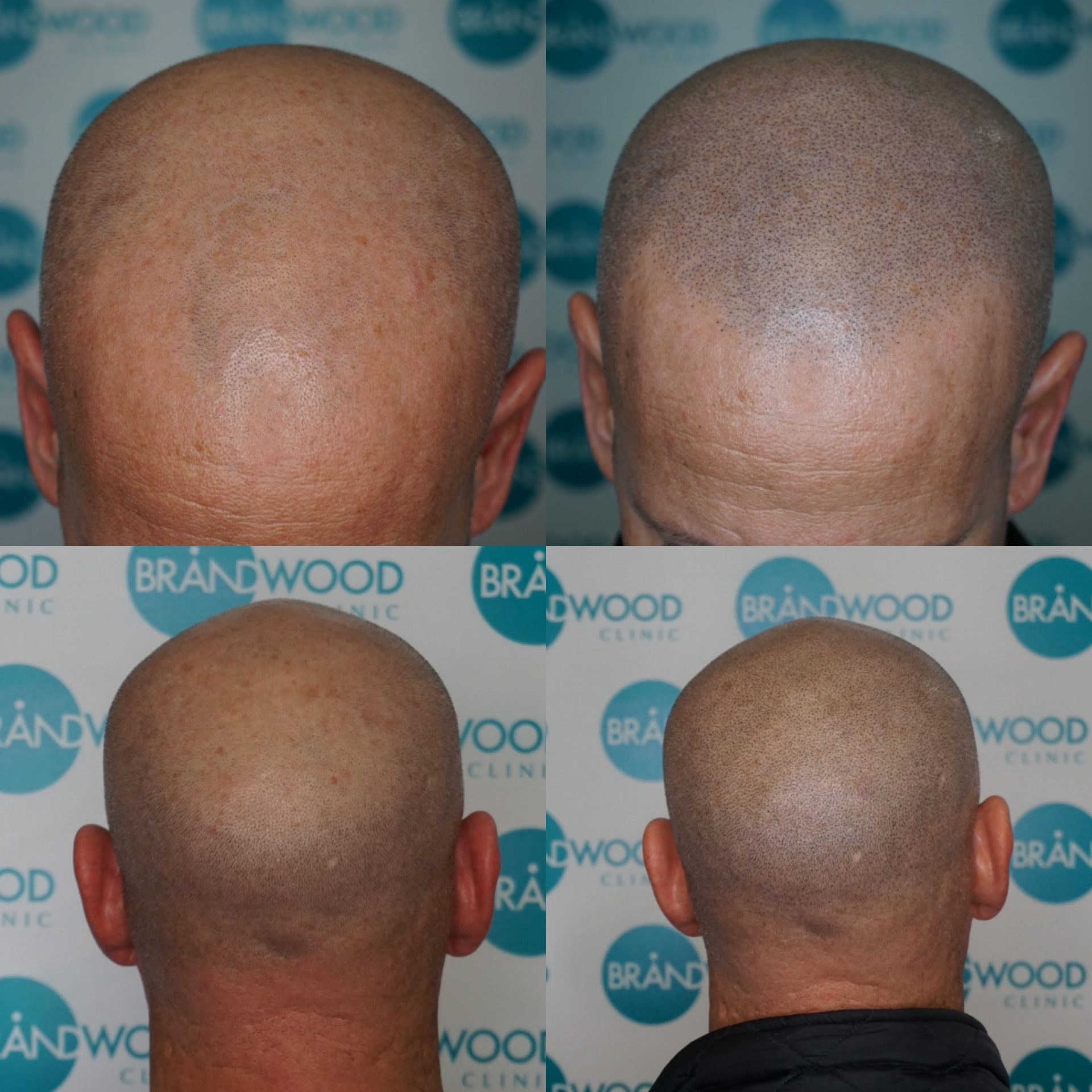 SMP male baldness cure