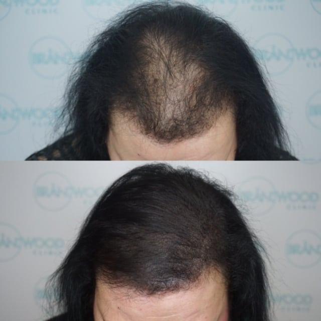 SMP vs hair fibres