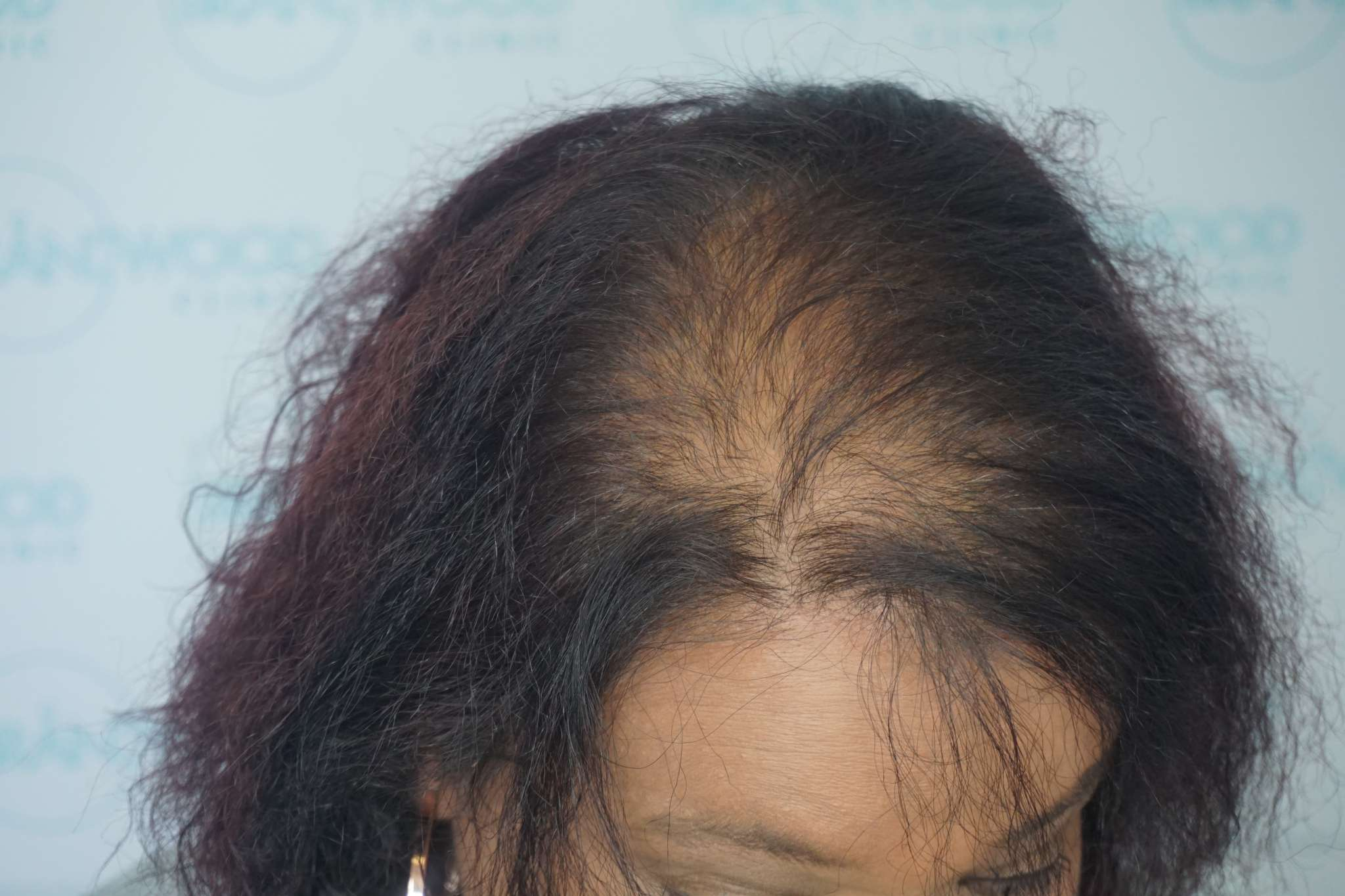 hair loss woman