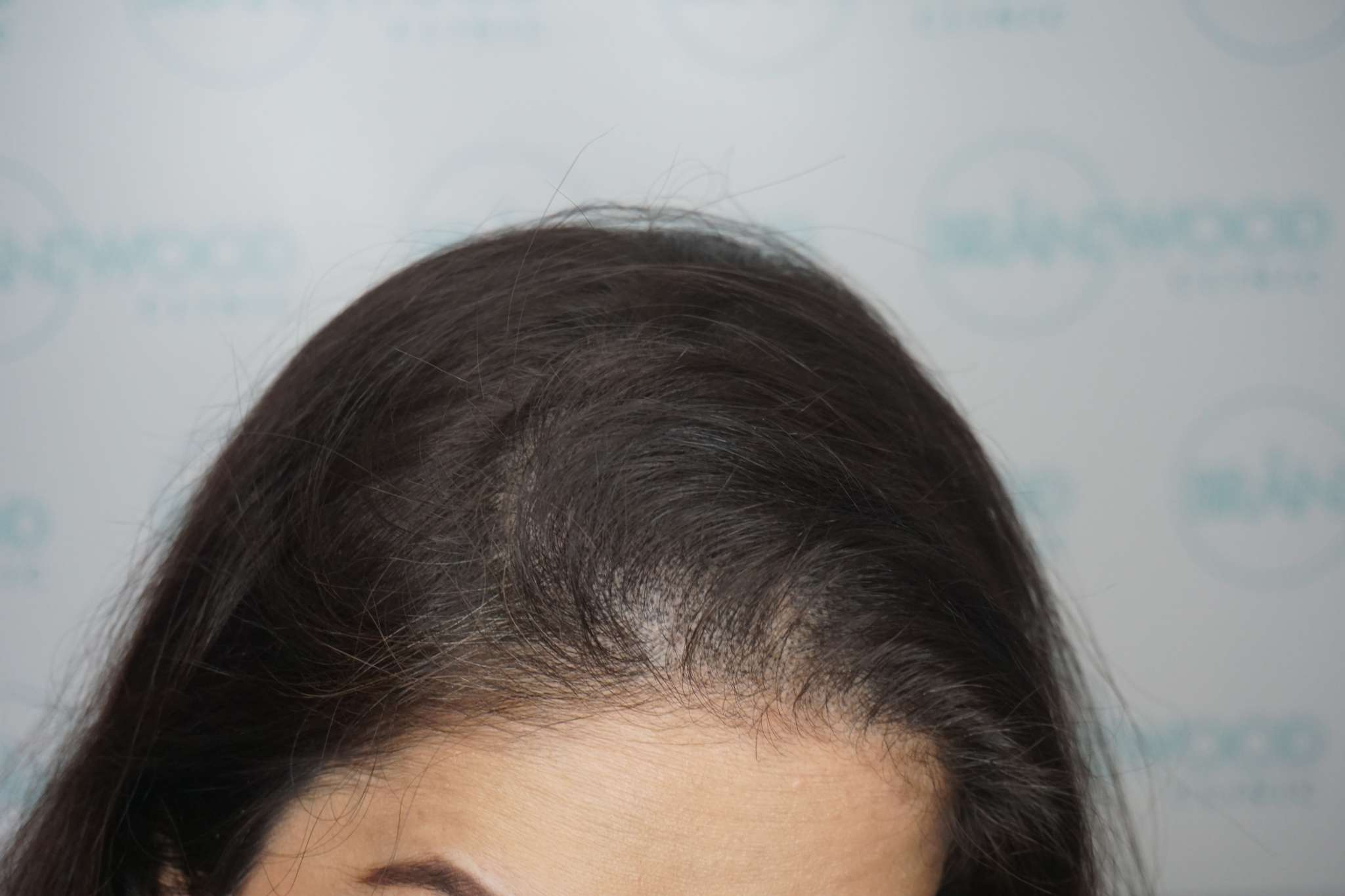 postpartum hair loss treated by SMP