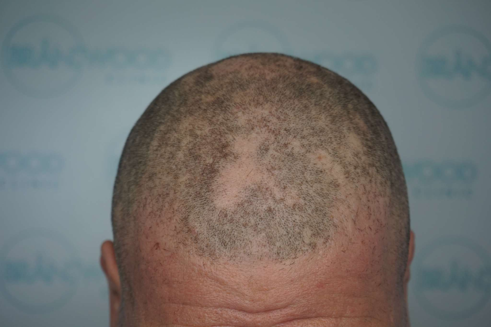 Male alopecia pre-SMP
