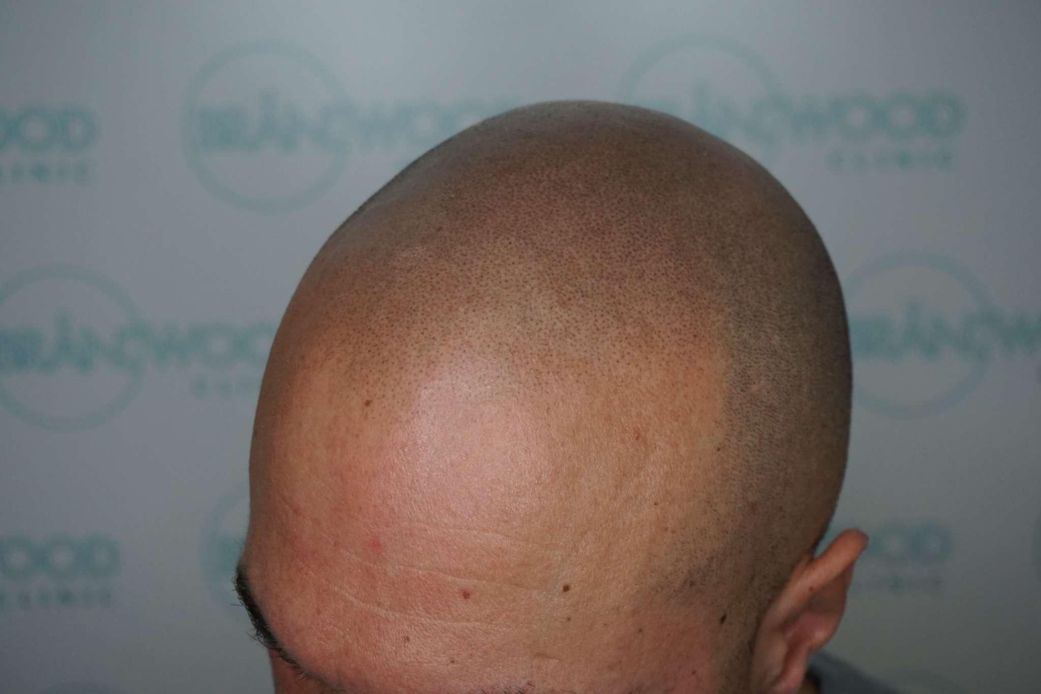 SMP treatment one, male pattern baldness