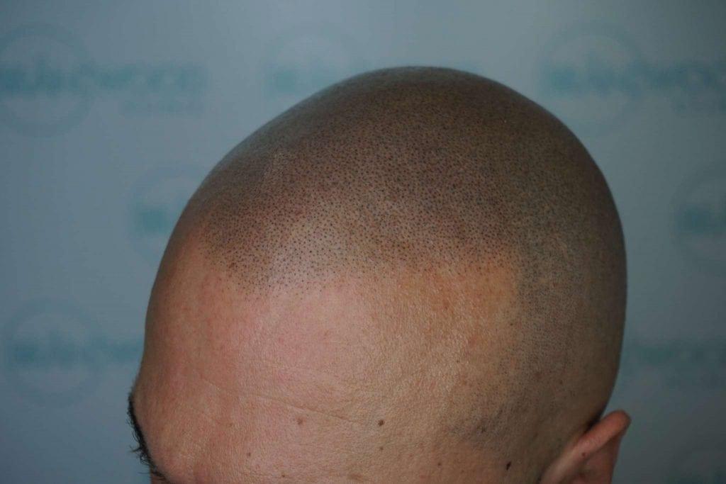 hair loss, SMP, hair tattoo