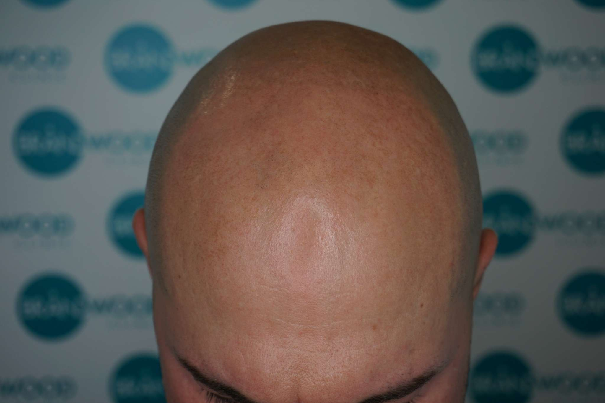 Tom's hair loss before SMP