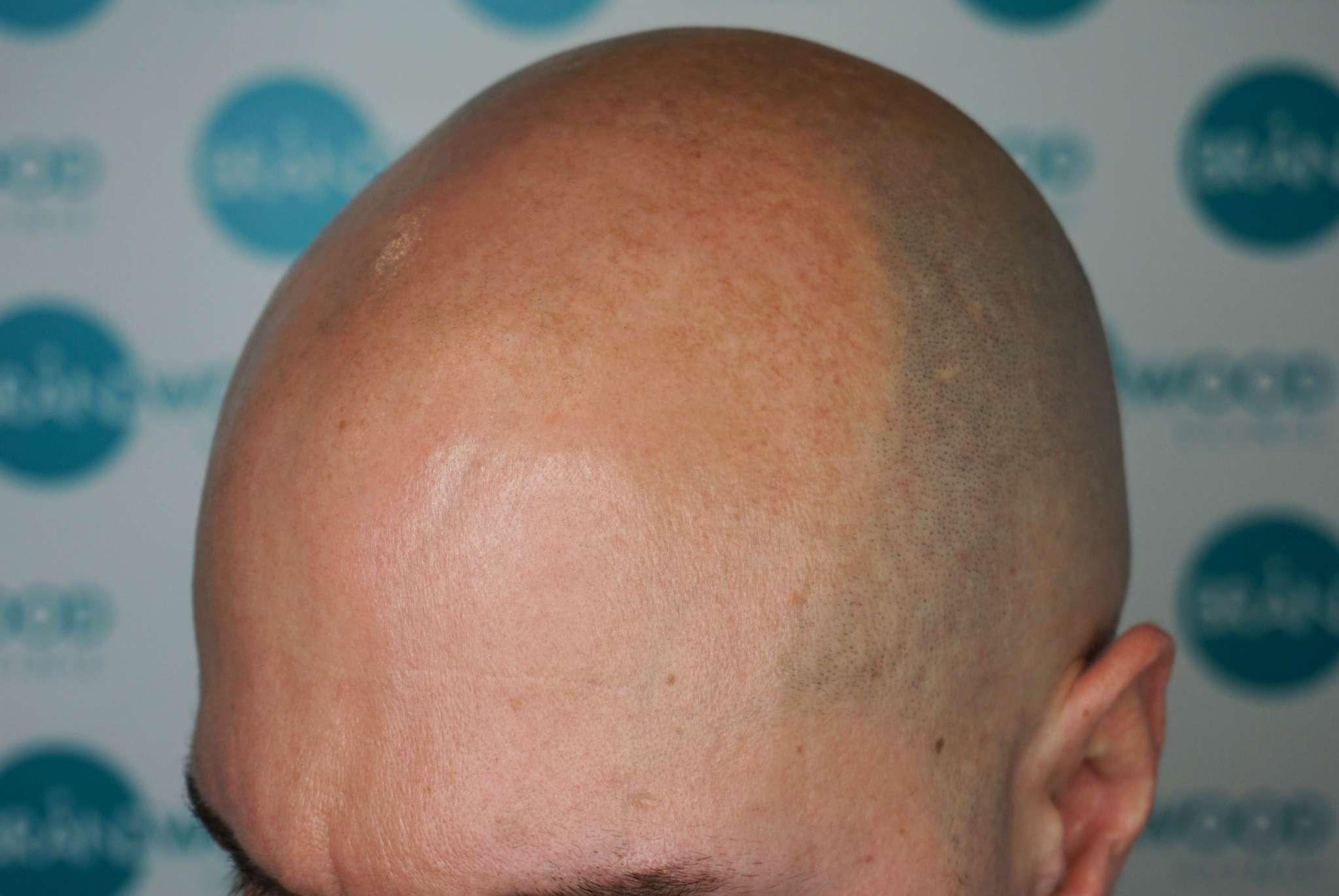 male hair loss pre-SMP