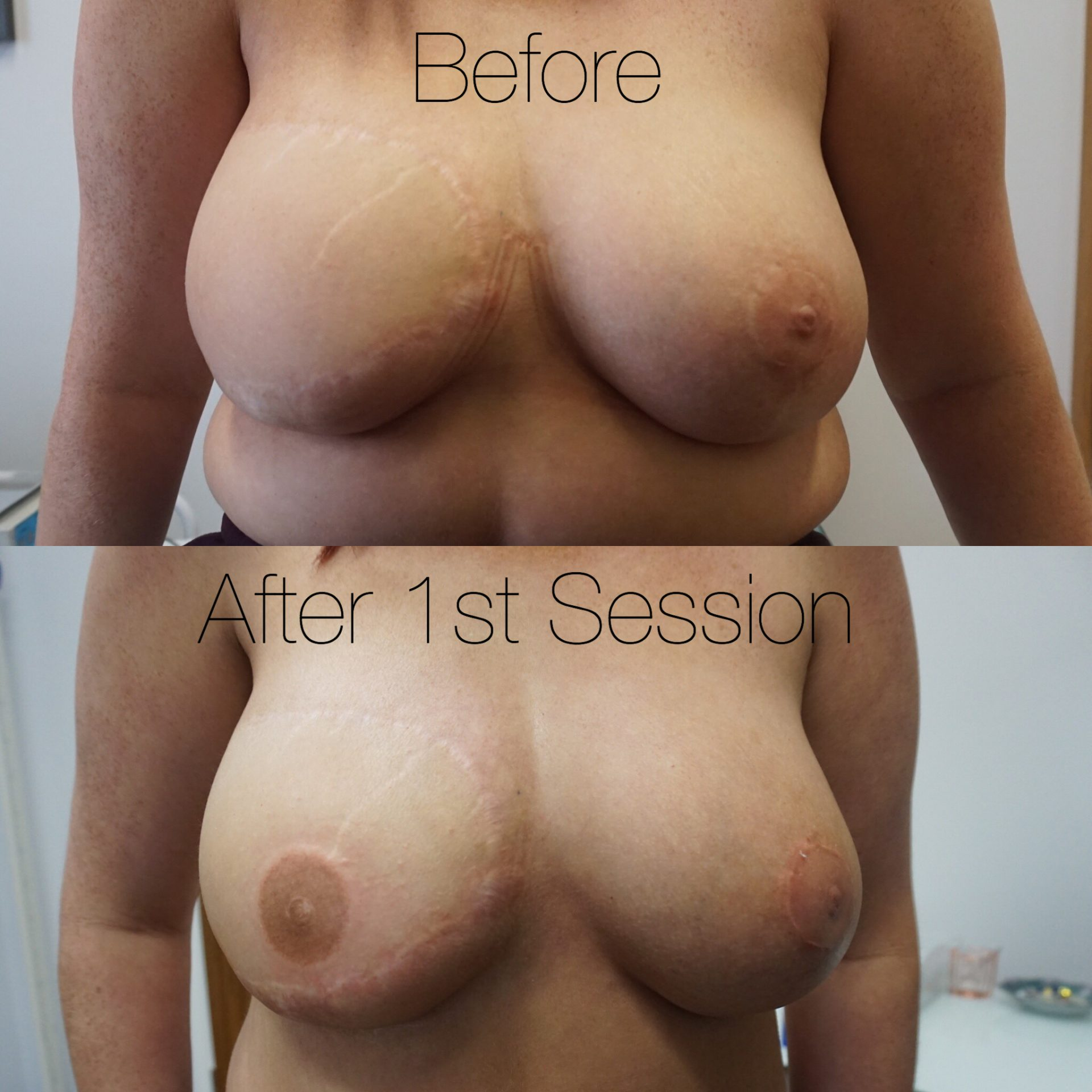 Before & After: Areola re-pigmentation