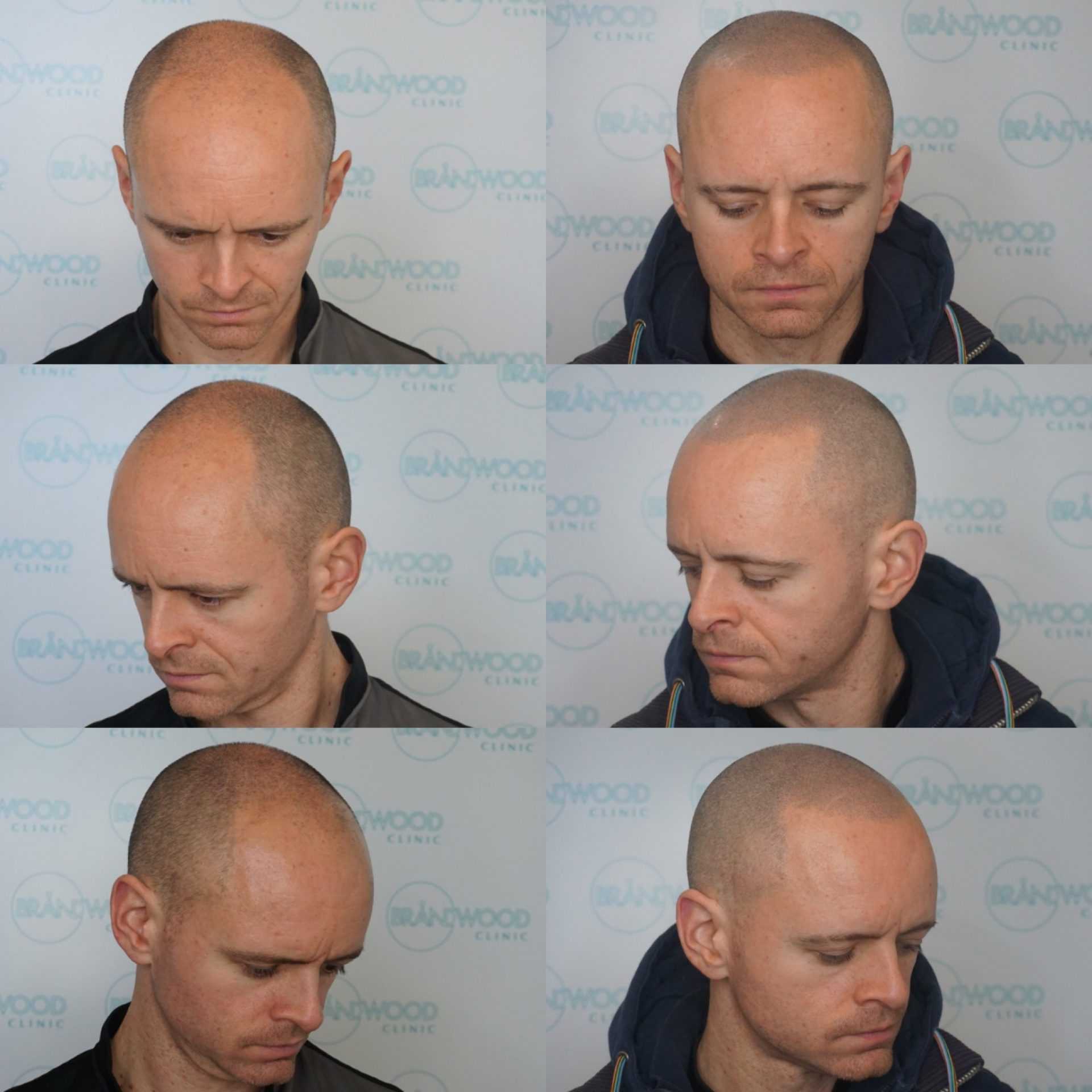 baldness treated with SMP