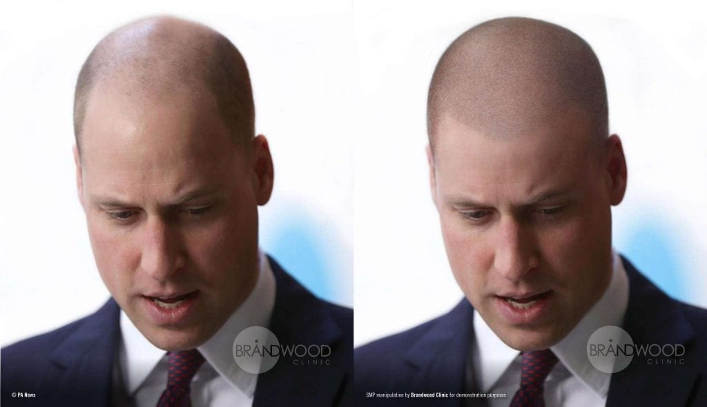 Prince William, hair loss, baldness, scalp micropigmentation