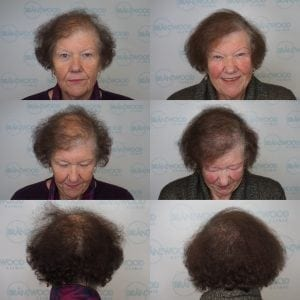 women's hair loss, chemotherapy