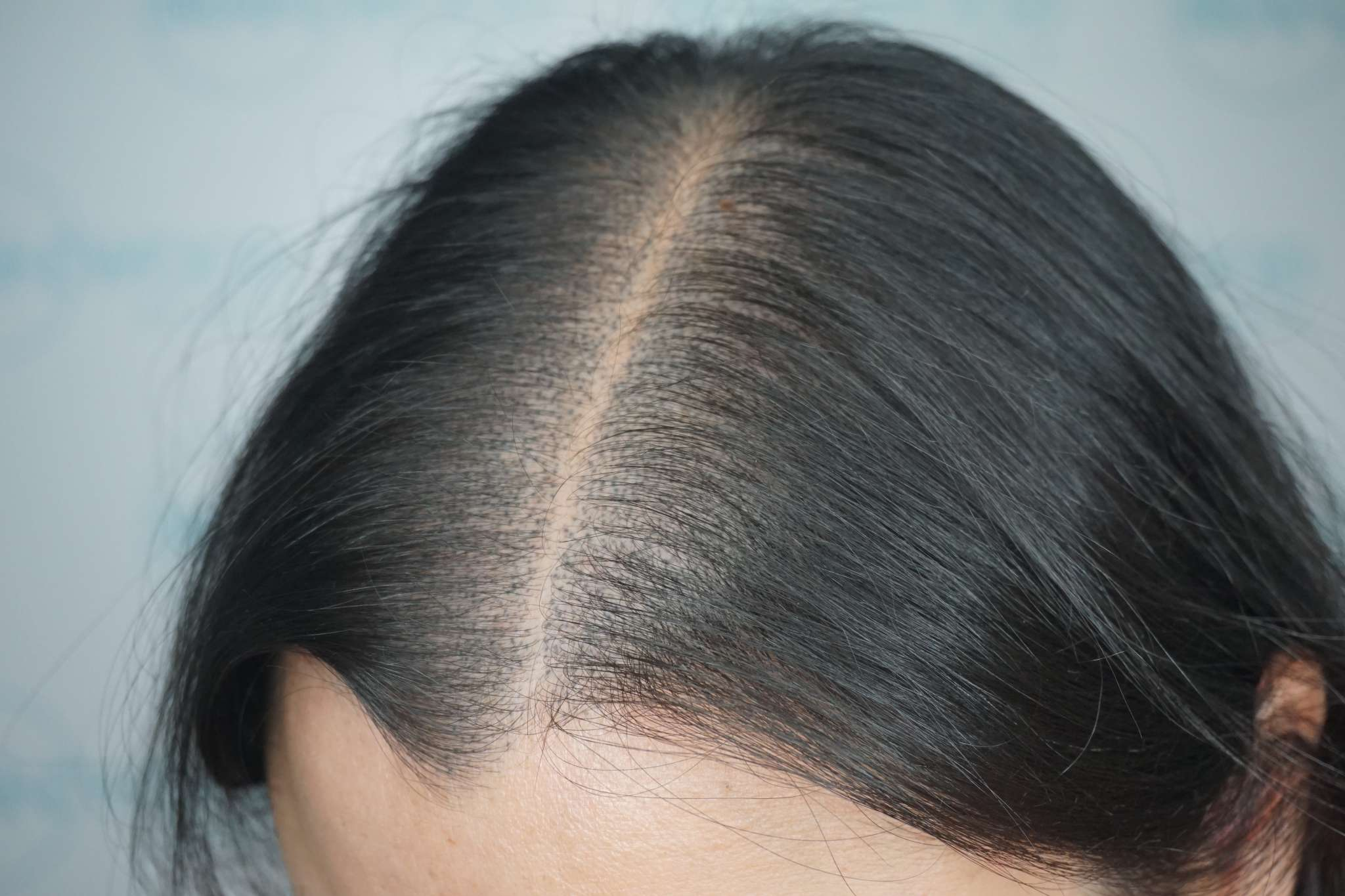 Hair tattoo for women's hair loss