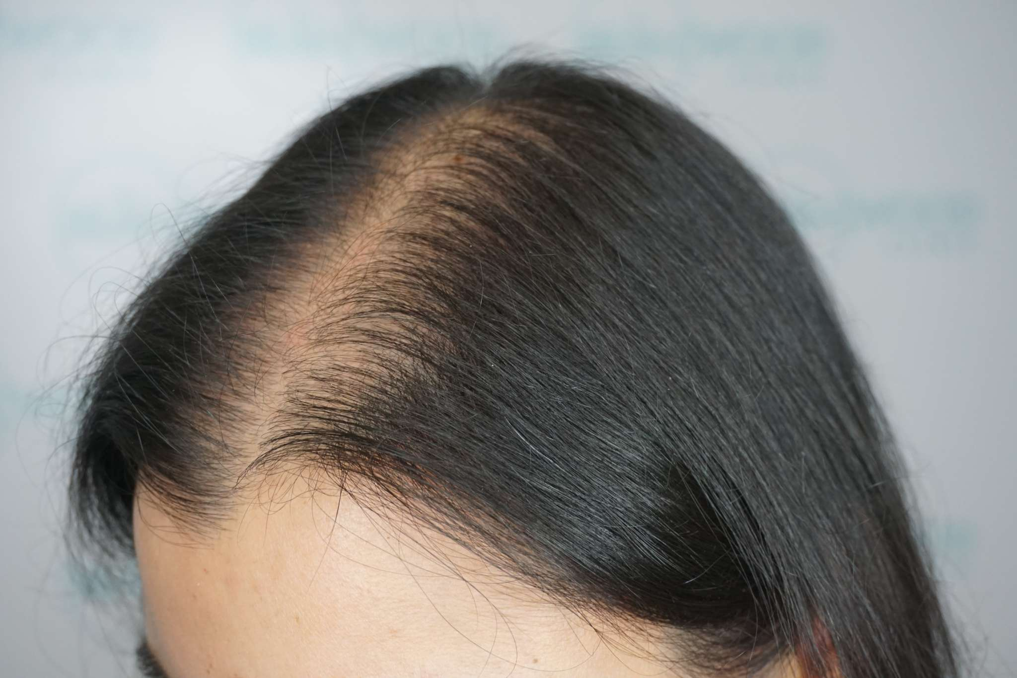 hormonal imbalance hair loss