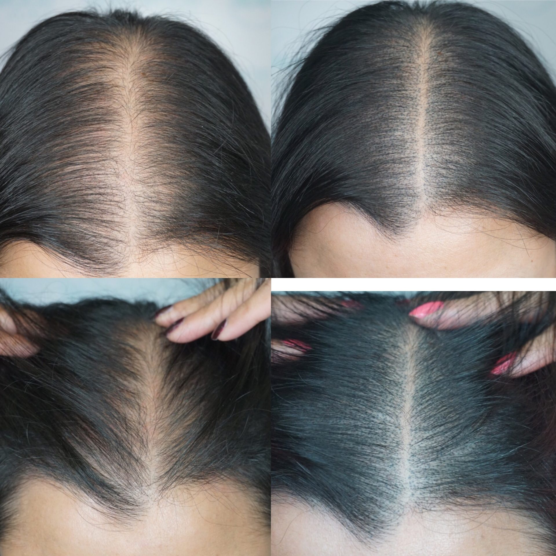 Asian female hair loss, SMP