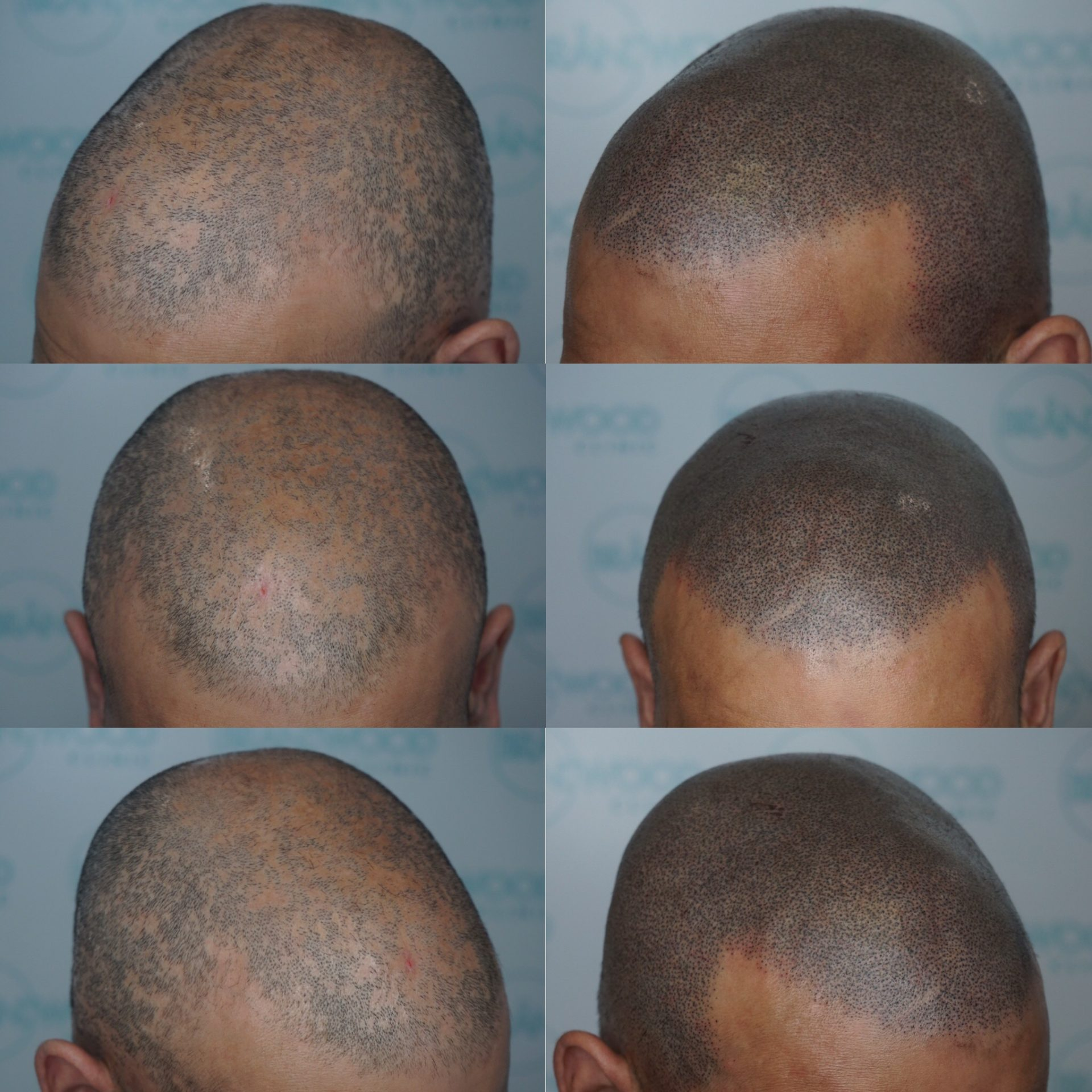 Cicatricial Alopecia before and after SMP