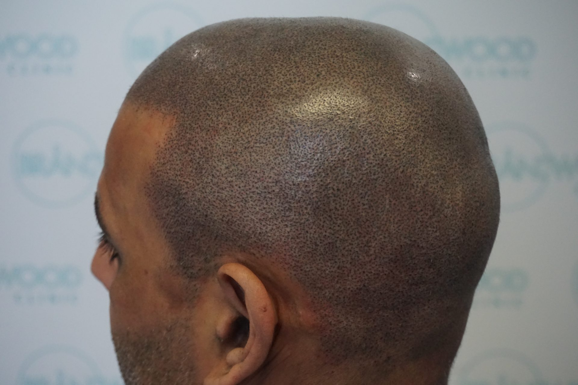 Scarring alopecia after SMP