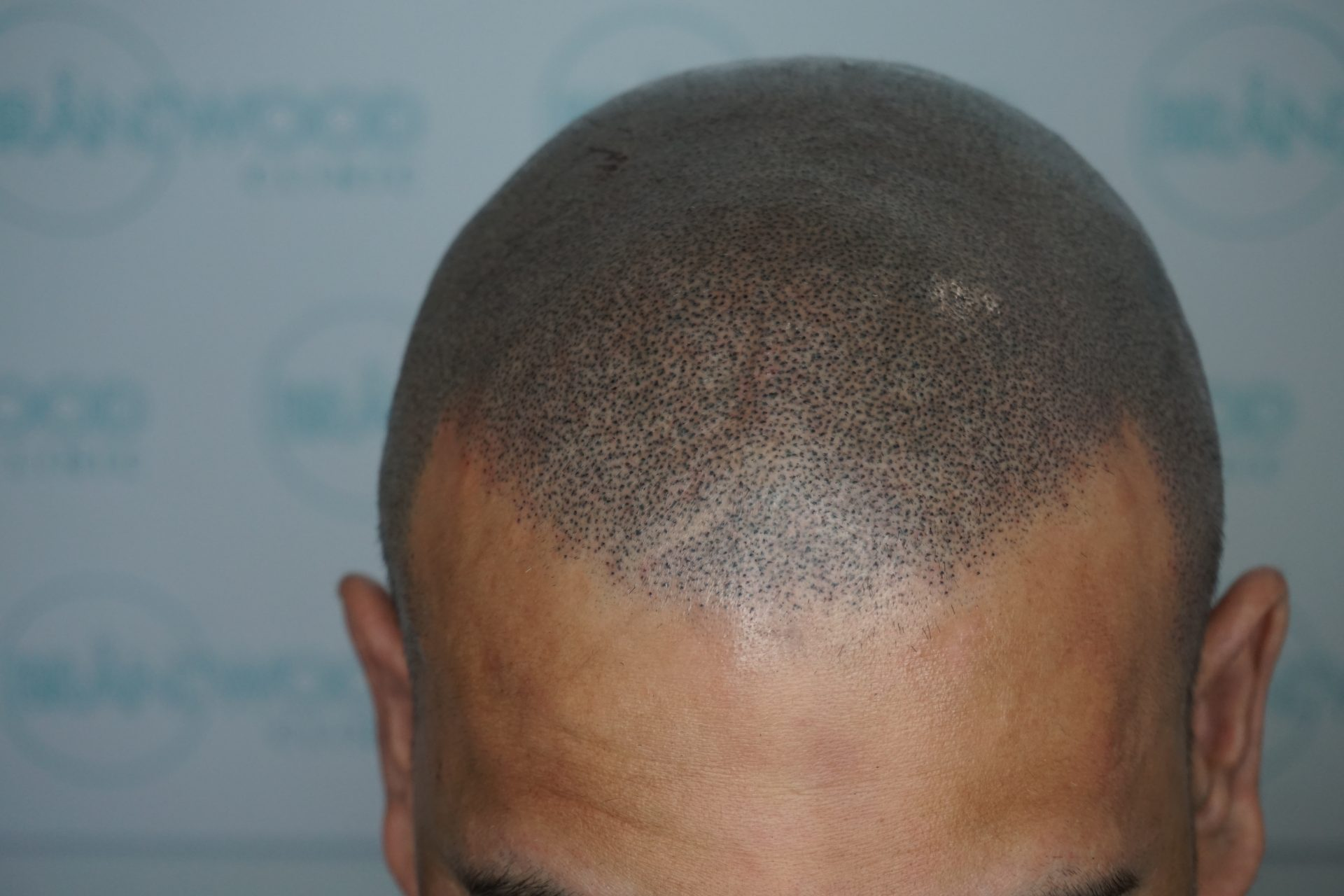 Cicatricial Alopecia after SMP