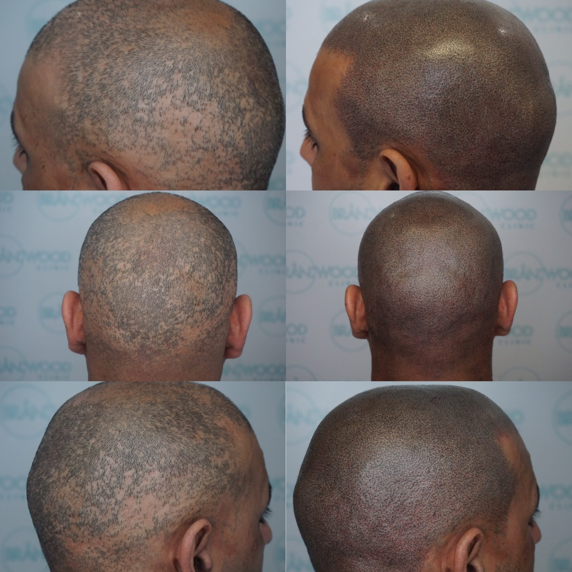 scarring alopecia pre and post SMP