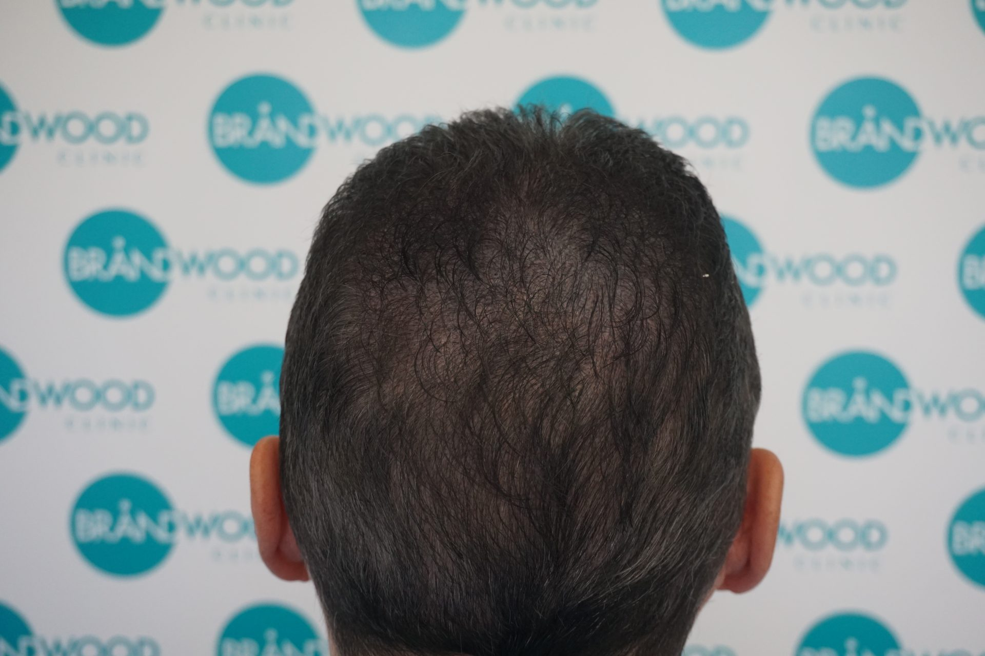 hair loss, scalp micropigmentation, hair tattoo