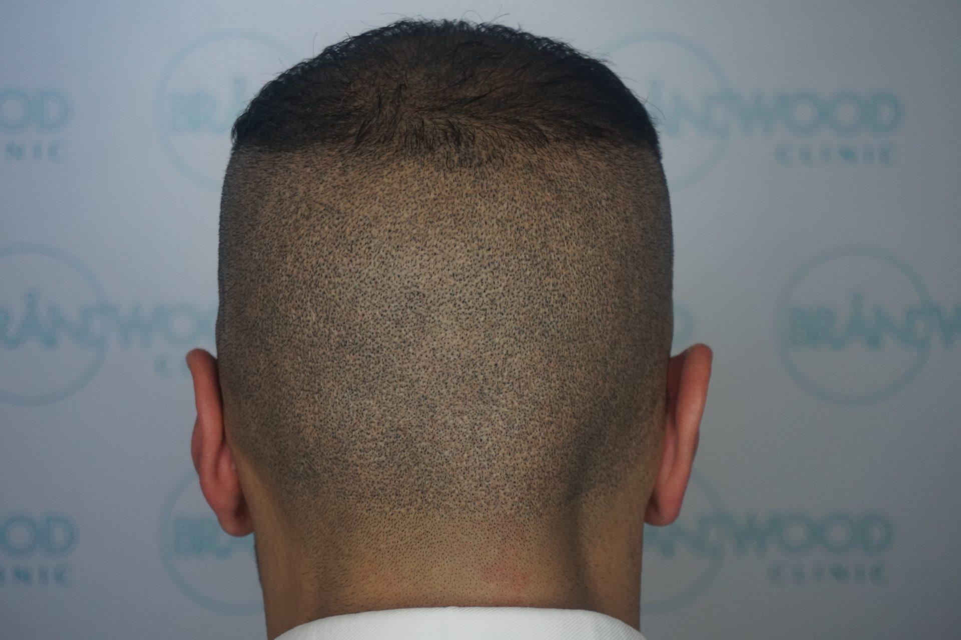 FUE scars Muslim client