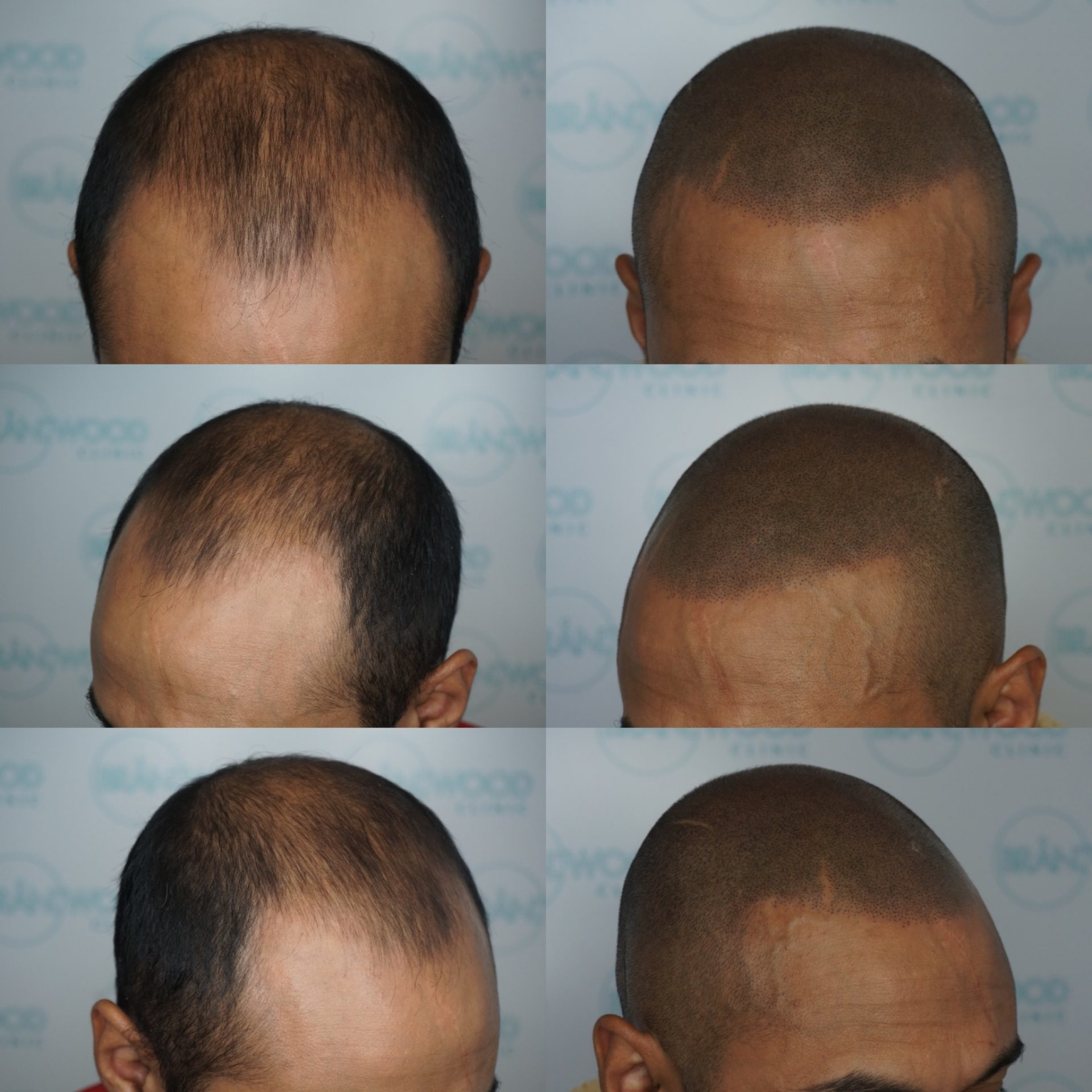 hair tattoo, Muslim, hair thinning