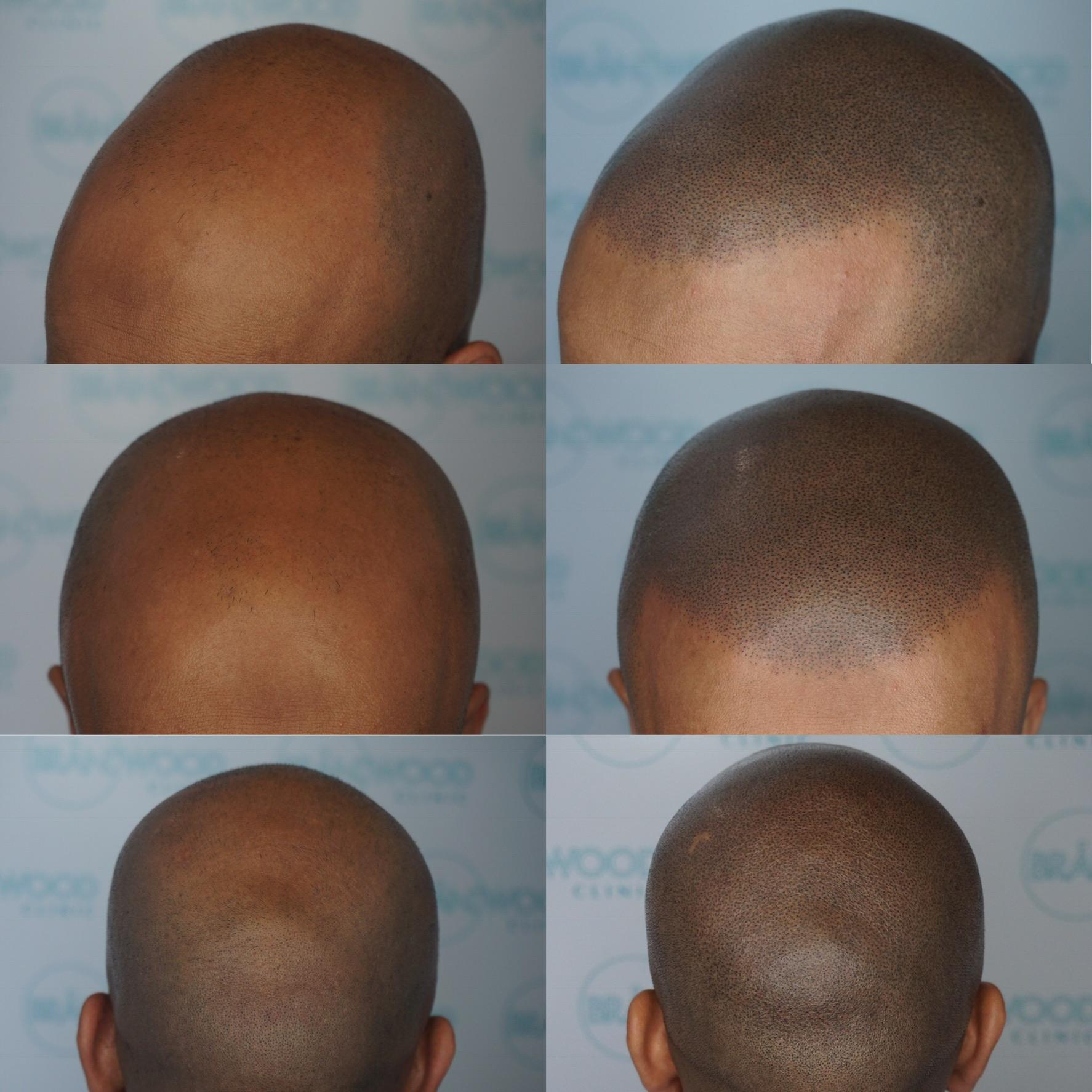Muslim scalp micropigmentation