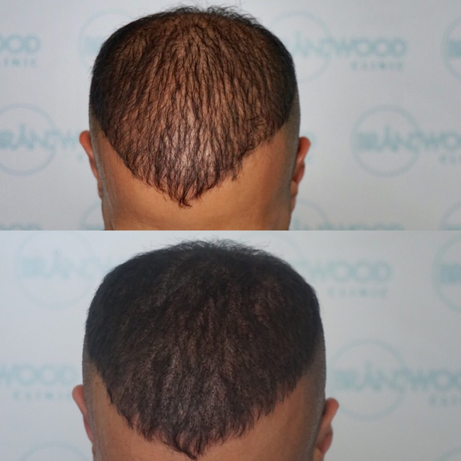 Scalp Micropigmentation, hair tattoo for hair thinning