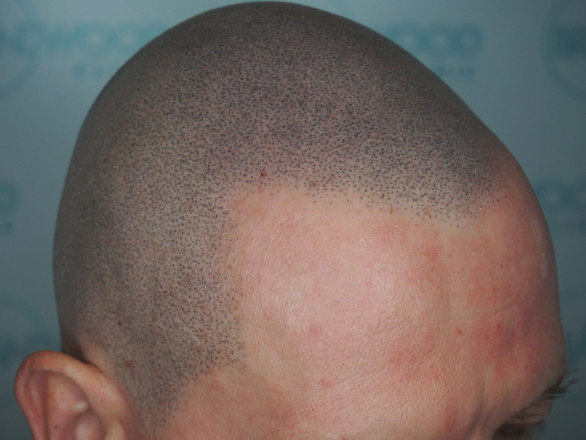 Alopecia: After