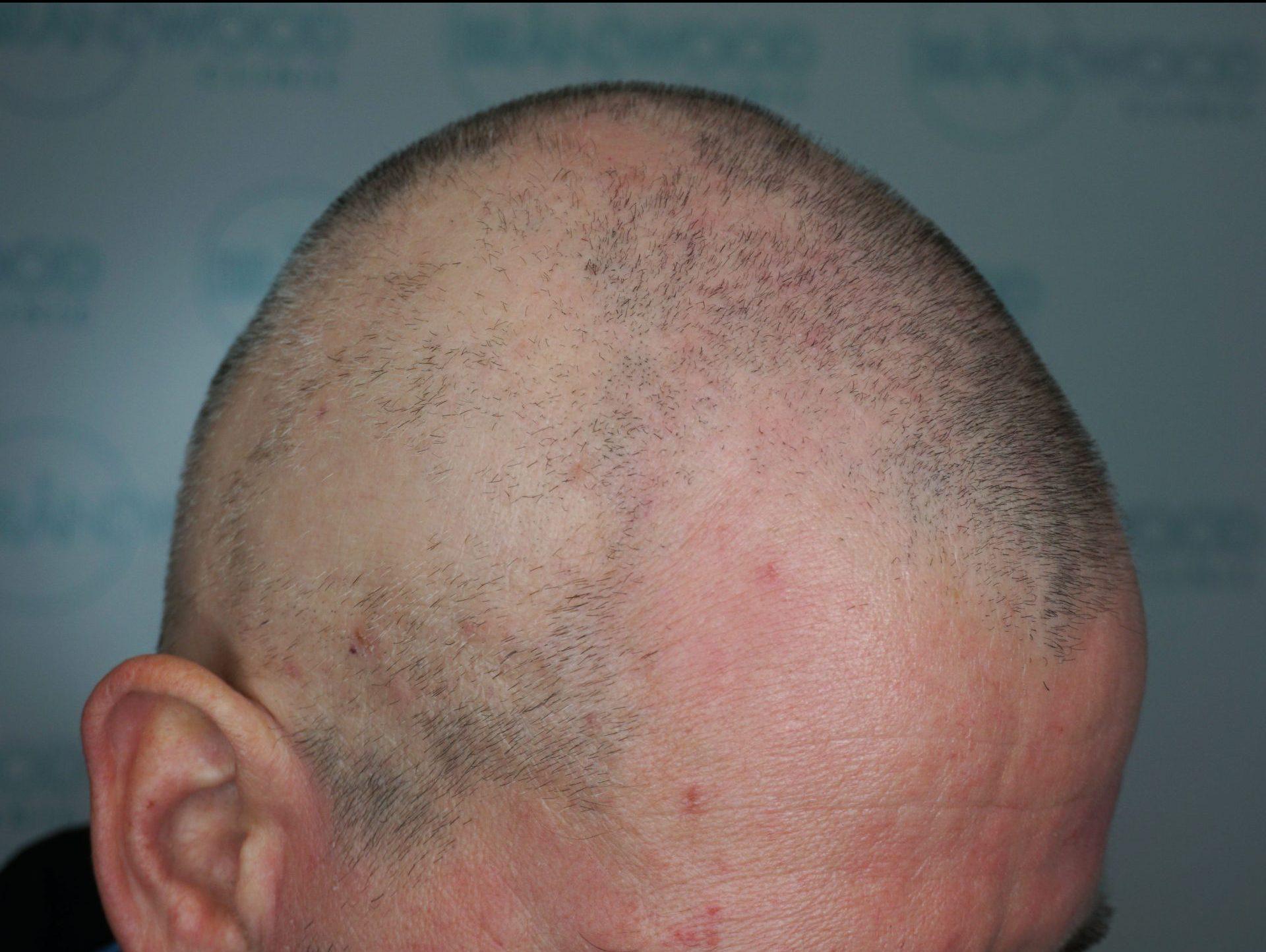Alopecia: Before