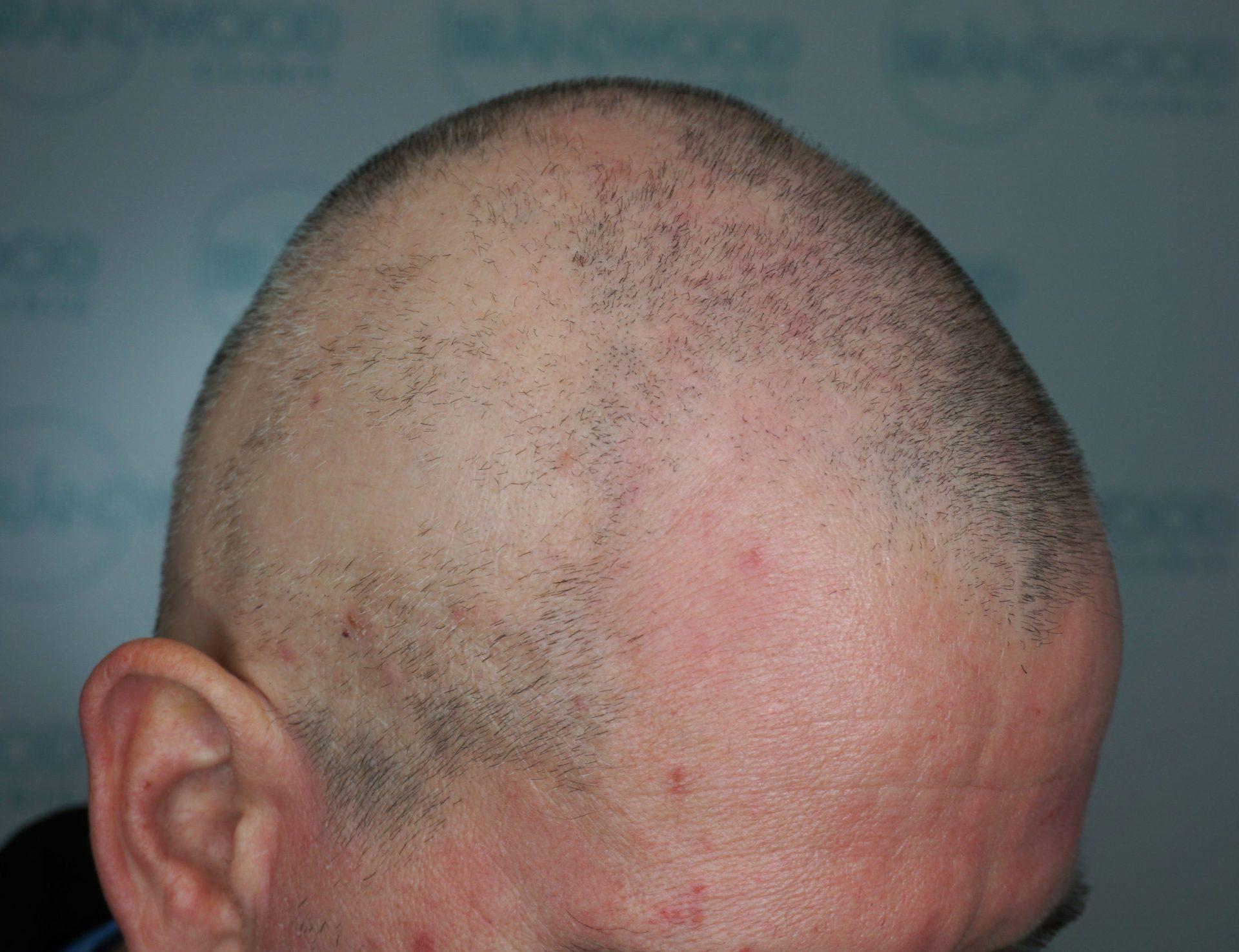 Alopecia-before-scalp-micropigmentation