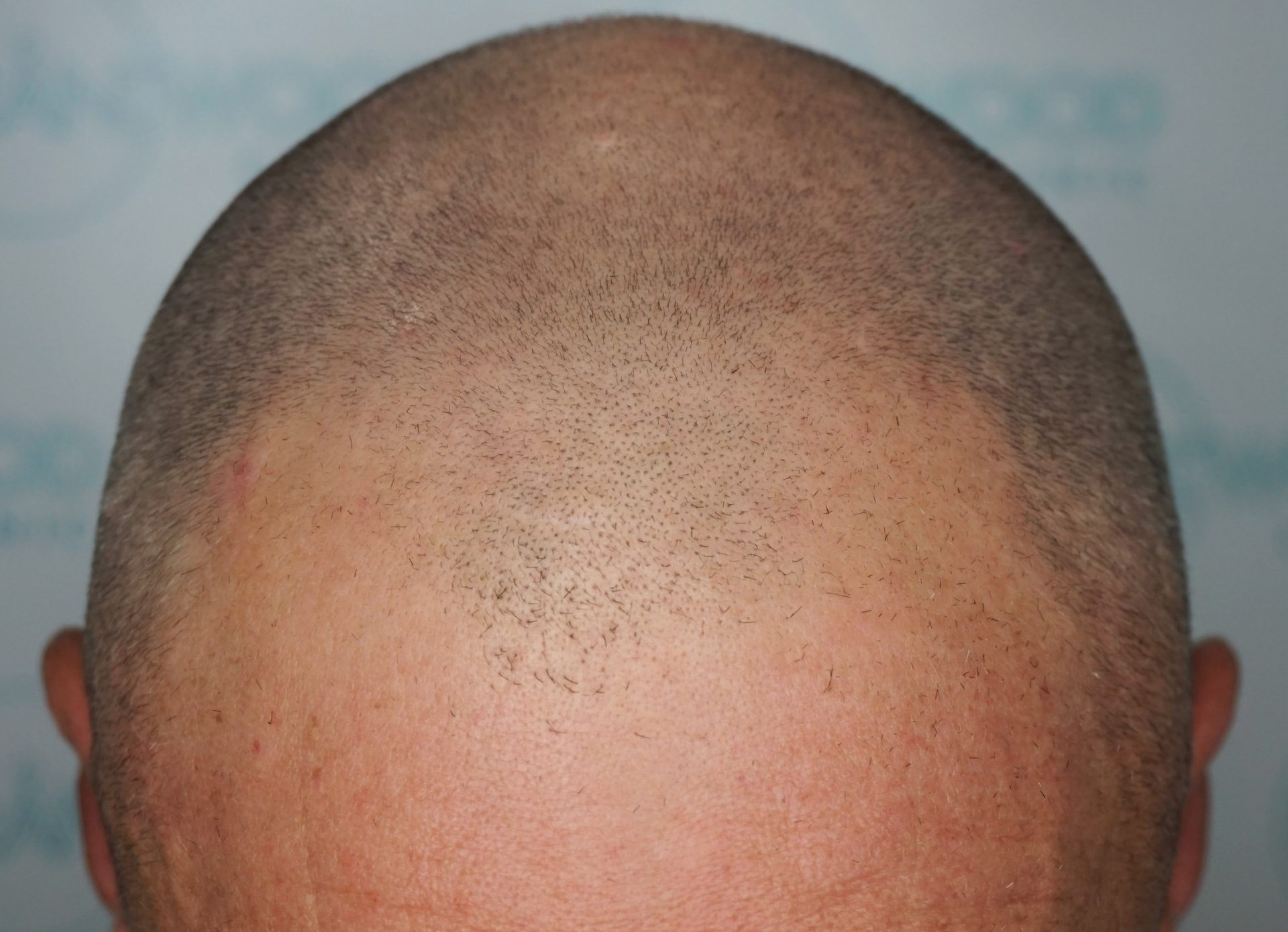 Male hair loss Norwood 5