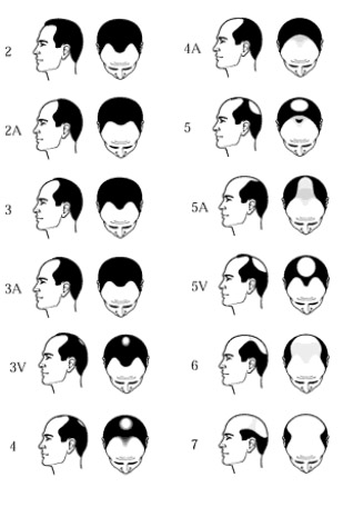 Norwood Scale Male Hair Loss