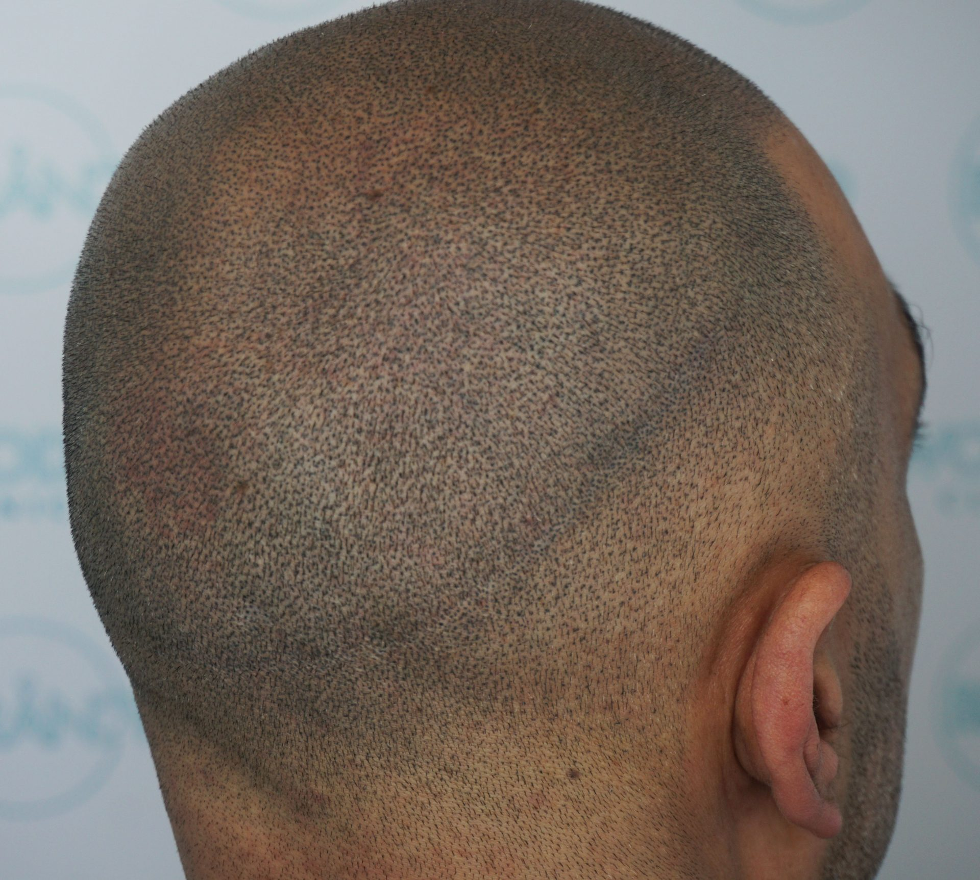 strip scar after scalp micropigmentation