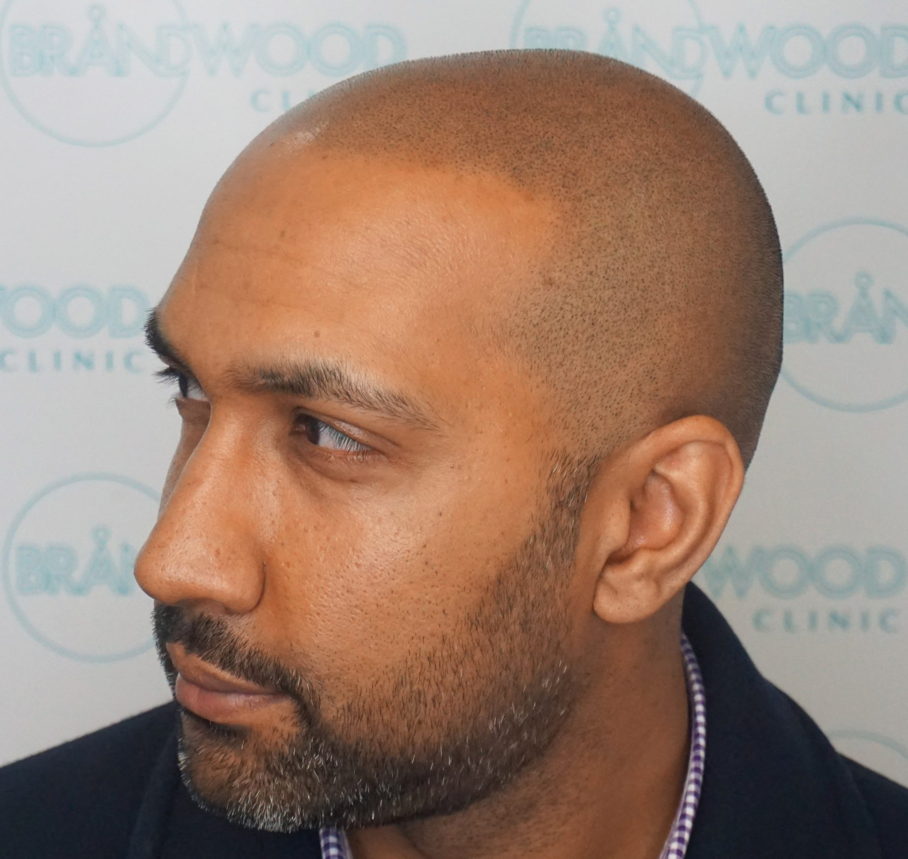 Male Pattern Baldness: After