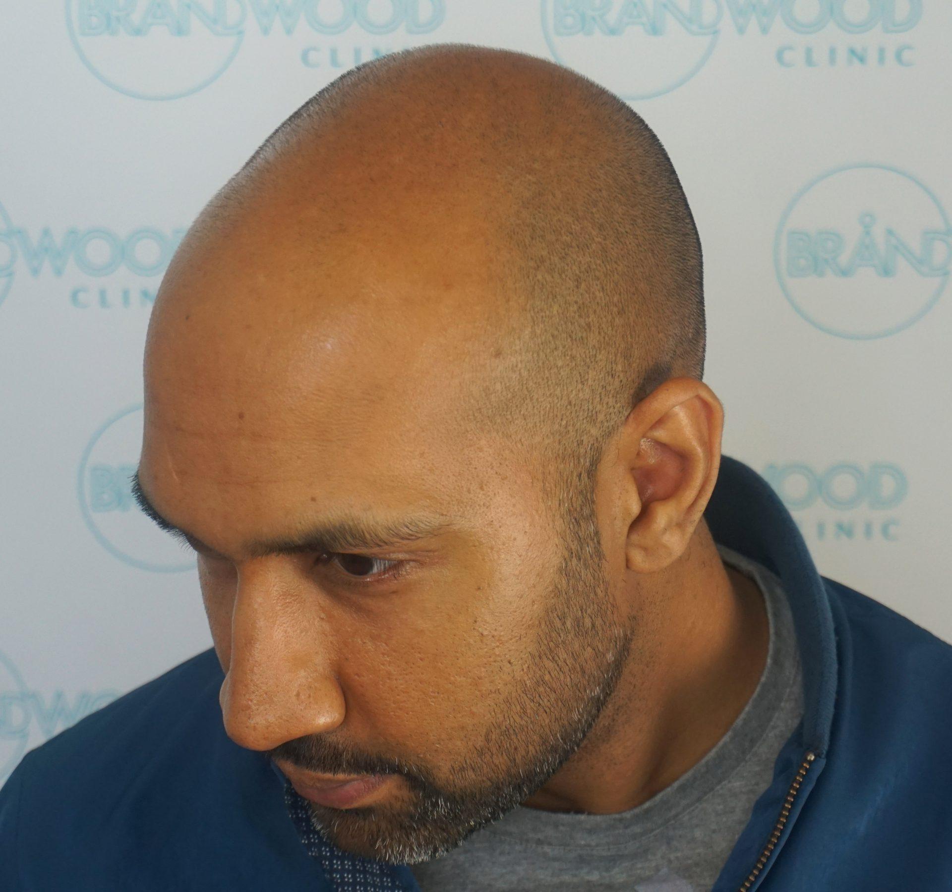 Male Pattern Baldness: Before
