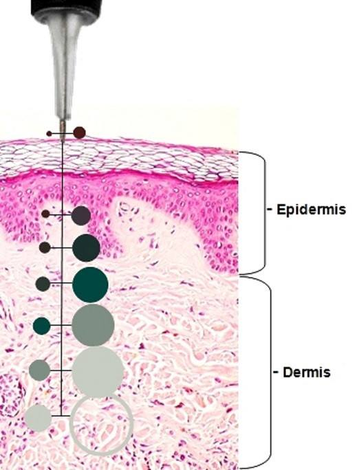 skin layers and needle depth